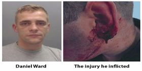 Runcorn Man Jailed For Knifepoint Robbery And Biting A Hole In A Police Officer's Ear - Cheshire Police